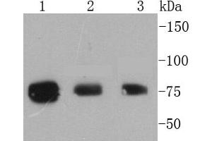 Western Blotting (WB) image for anti-Ribosomal Protein S6 Kinase, 90kDa, Polypeptide 1 (RPS6KA1) (pSer363), (pThr359) antibody (ABIN5557523)