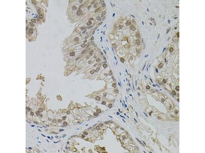 Immunohistochemistry (Paraffin-embedded Sections) (IHC (p)) image for anti-Mitogen-Activated Protein Kinase 1 (MAPK1) antibody (ABIN6143516)