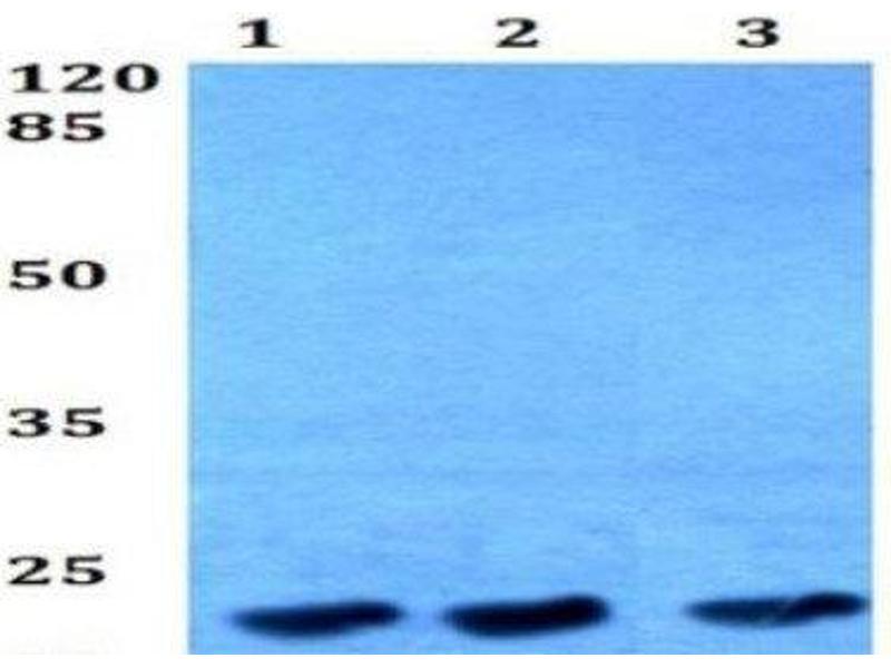 Western Blotting (WB) image for anti-Tumor Protein, Translationally-Controlled 1 (TPT1) antibody (ABIN408173)
