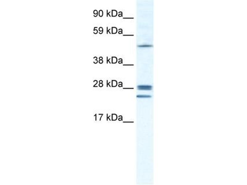 Western Blotting (WB) image for anti-Gap Junction Protein, beta 2, 26kDa (GJB2) (Middle Region) antibody (ABIN2774858)