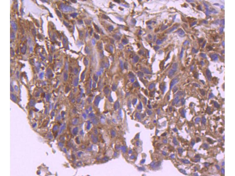 Immunohistochemistry (Paraffin-embedded Sections) (IHC (p)) image for anti-Interferon Regulatory Factor 3 (IRF3) antibody (ABIN5557495)