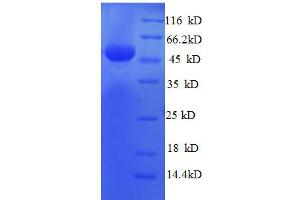 Image no. 1 for Ribosomal Protein L8 (RPL8) (AA 3-257), (partial) protein (GST tag) (ABIN1607946)