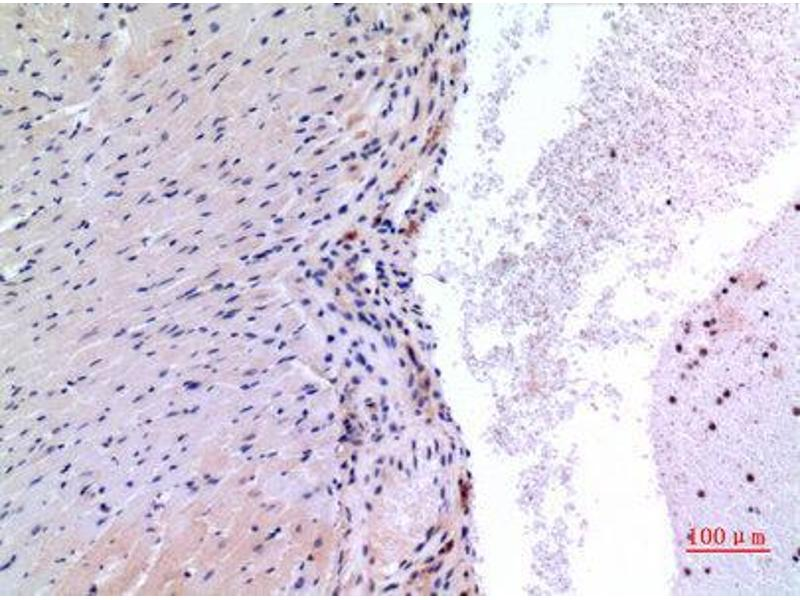 Immunohistochemistry (IHC) image for anti-Vascular Endothelial Growth Factor C (VEGFC) (Internal Region) antibody (ABIN3187817)