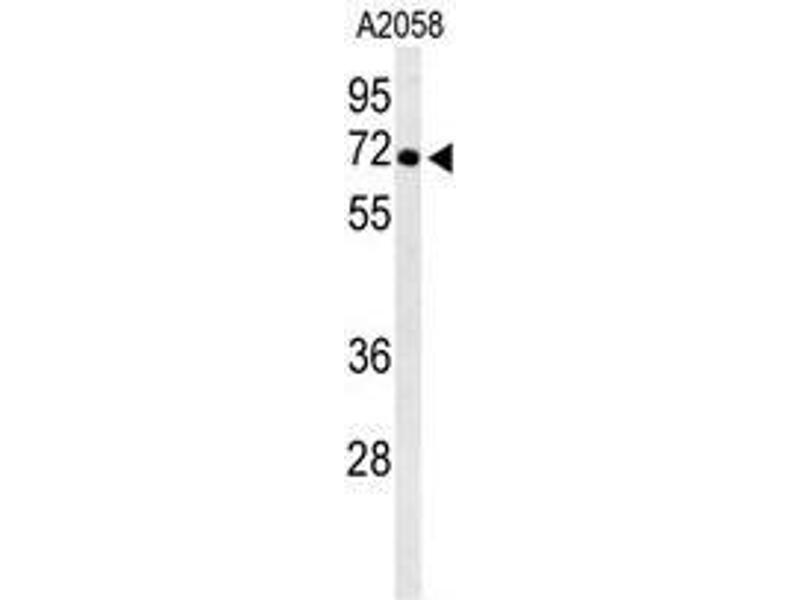 Western Blotting (WB) image for anti-ATPase, H+ Transporting, Lysosomal 70kDa, V1 Subunit A (ATP6V1A) (AA 447-477), (Middle Region) antibody (ABIN950568)