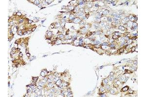 Immunohistochemistry (Paraffin-embedded Sections) (IHC (p)) image for anti-Mechanistic Target of Rapamycin (serine/threonine Kinase) (FRAP1) antibody (ABIN6144169)