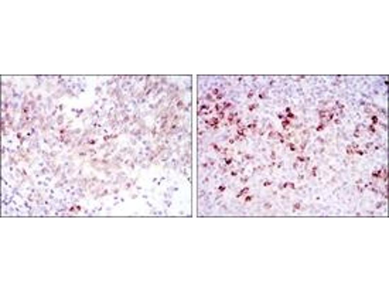 Immunohistochemistry (IHC) image for anti-Cortactin antibody (CTTN) (ABIN1106822)