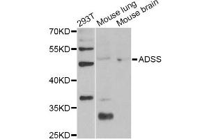 Image no. 4 for anti-Adenylosuccinate Synthase (ADSS) antibody (ABIN6567446)