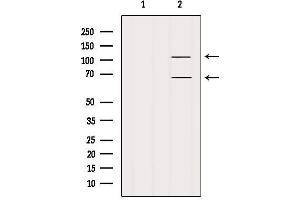 Image no. 3 for anti-Family with Sequence Similarity 65, Member B (FAM65B) antibody (ABIN6261669)