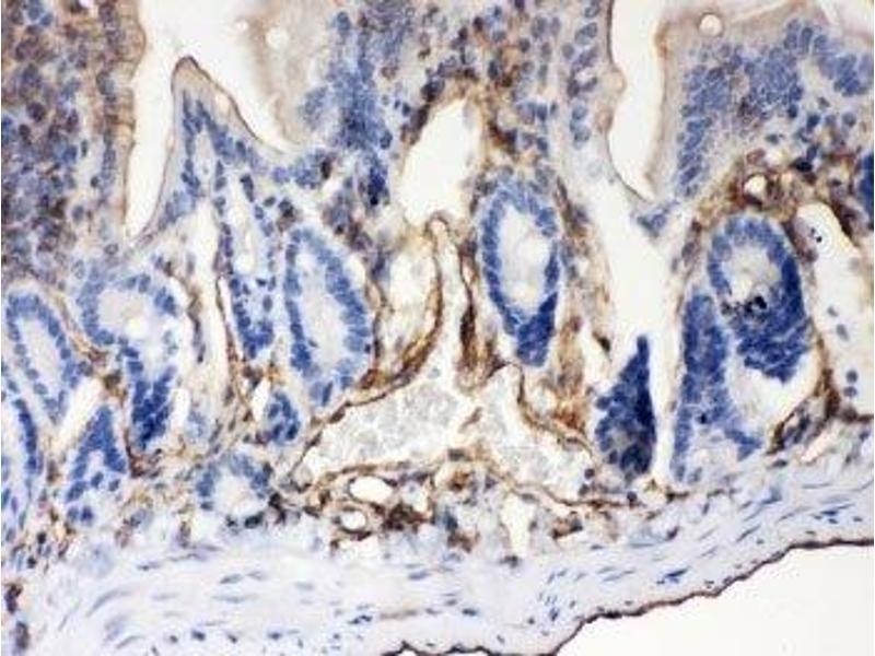 Immunohistochemistry (IHC) image for anti-ATP-Binding Cassette, Sub-Family B (MDR/TAP), Member 4 (ABCB4) (AA 601-720) antibody (ABIN3028483)