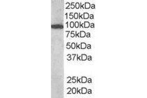 Western Blotting (WB) image for anti-Vav 3 Oncogene (VAV3) (Internal Region) antibody (ABIN2560712)