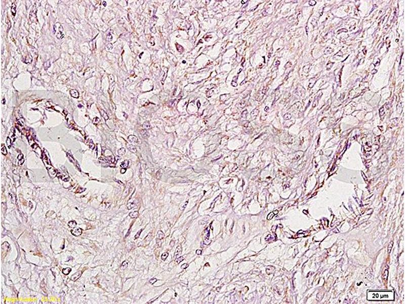 Immunohistochemistry (IHC) image for anti-Fibroblast Growth Factor Receptor 4 (FGFR4) (AA 40-90) antibody (ABIN671766)