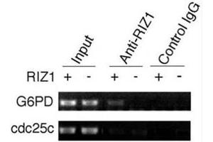 Image no. 5 for anti-PR Domain Containing 2, with ZNF Domain (PRDM2) (AA 1-347) antibody (ABIN3032300)