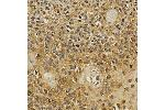 Immunohistochemistry (IHC) image for anti-Nuclear Factor of Activated T-Cells, Cytoplasmic, Calcineurin-Dependent 1 (NFATC1) antibody (ABIN3022101)