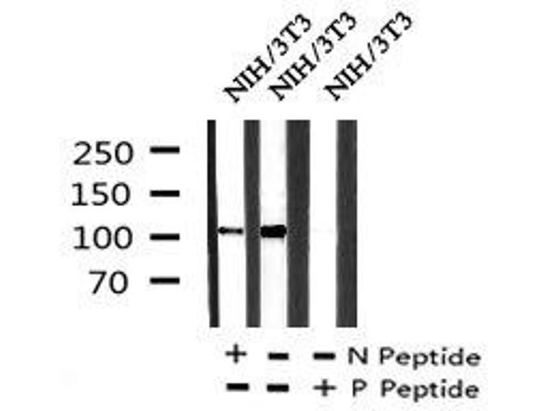 Image no. 2 for anti-EPH Receptor A2 (EPHA2) (pSer897) antibody (ABIN6269971)