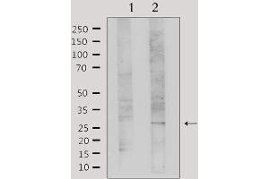 Image no. 1 for anti-Lectin, Galactoside-Binding, Soluble, 3 (LGALS3) antibody (ABIN6261872)