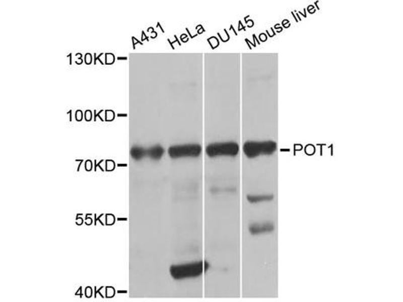 Image no. 1 for anti-Protection of Telomeres 1 Homolog (S. Pombe) (POT1) antibody (ABIN6568518)