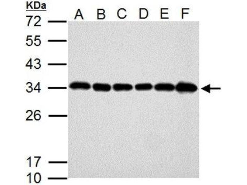 Western Blotting (WB) image for anti-Caspase 3, Apoptosis-Related Cysteine Peptidase (CASP3) (Center) antibody (ABIN4288100)