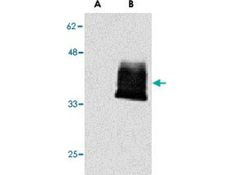 Western Blotting (WB) image for anti-Tumor Necrosis Factor Receptor Superfamily, Member 12A (TNFRSF12A) antibody (ABIN541283)