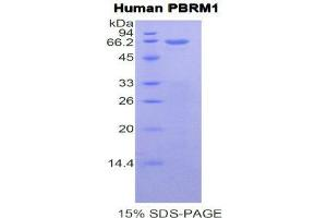Image no. 1 for Polybromo 1 (PBRM1) protein (ABIN1171146)