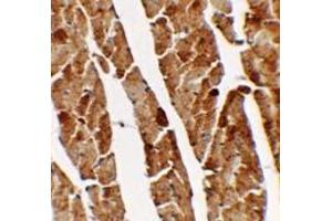 Immunohistochemistry (Paraffin-embedded Sections) (IHC (p)) image for anti-Transglutaminase 5 antibody (TGM5) (C-Term) (ABIN1450065)