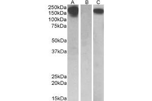 Western Blotting (WB) image for anti-CSF1R antibody (Colony Stimulating Factor 1 Receptor) (ABIN2169323)