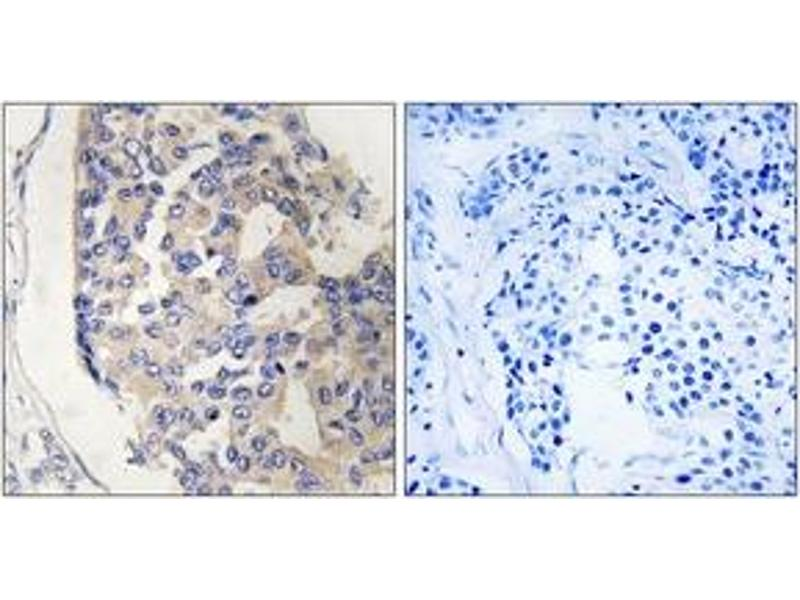 Immunohistochemistry (IHC) image for anti-Complement Component 1, S Subcomponent (C1S) (AA 541-590) antibody (ABIN1534794)