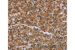 Immunohistochemistry (IHC) image for anti-Interleukin 2 Receptor, gamma (IL2RG) antibody (ABIN2430307)