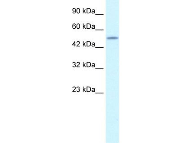 Western Blotting (WB) image for anti-CAMP Responsive Element Binding Protein 3-Like 2 (CREB3L2) (N-Term) antibody (ABIN183063)