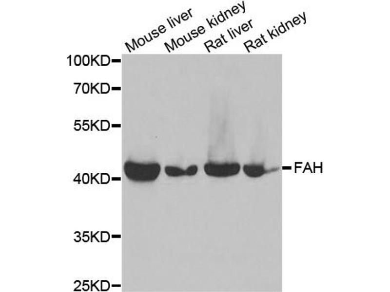 Image no. 1 for anti-Fumarylacetoacetate Hydrolase (Fumarylacetoacetase) (FAH) antibody (ABIN6568002)