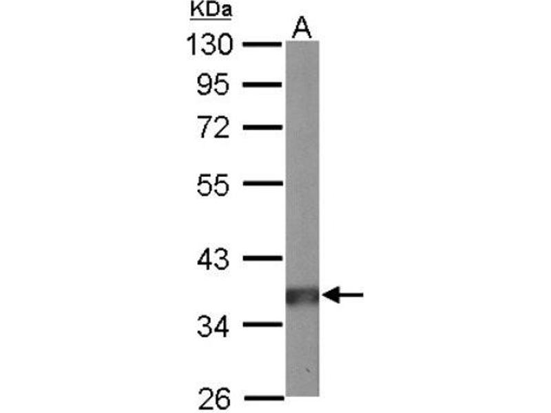 Western Blotting (WB) image for anti-Protein Phosphatase 2, Catalytic Subunit, alpha Isozyme (PPP2CA) (C-Term) antibody (ABIN441297)