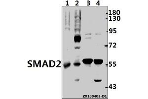 Western Blotting (WB) image for anti-SMAD, Mothers Against DPP Homolog 2 (SMAD2) (AA 426-476) antibody (ABIN6711985)