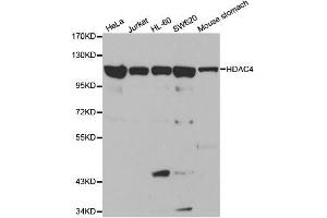 Image no. 3 for anti-Histone Deacetylase 4 (HDAC4) antibody (ABIN3020757)
