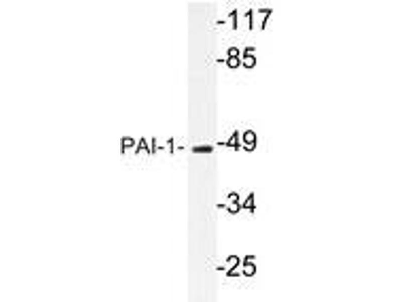Western Blotting (WB) image for anti-SERPINE1 antibody (serpin Peptidase Inhibitor, Clade E (Nexin, Plasminogen Activator Inhibitor Type 1), Member 1) (ABIN498523)