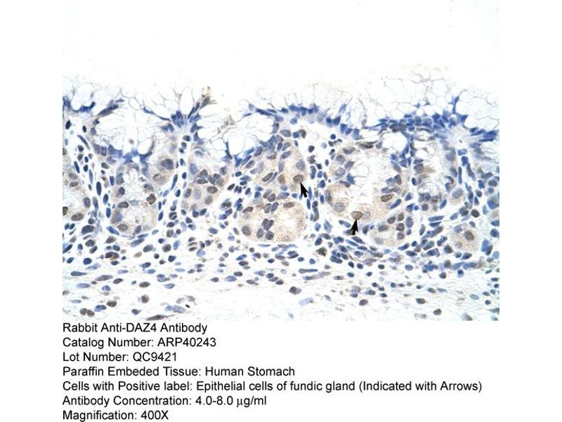 Image no. 1 for anti-Deleted In Azoospermia 4 (DAZ4) (N-Term) antibody (ABIN2778697)