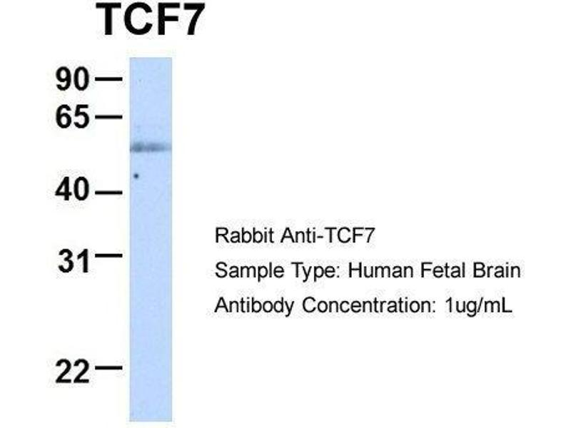 Western Blotting (WB) image for anti-TCF7 antibody (Transcription Factor 7 (T-Cell Specific, HMG-Box)) (Middle Region) (ABIN486835)