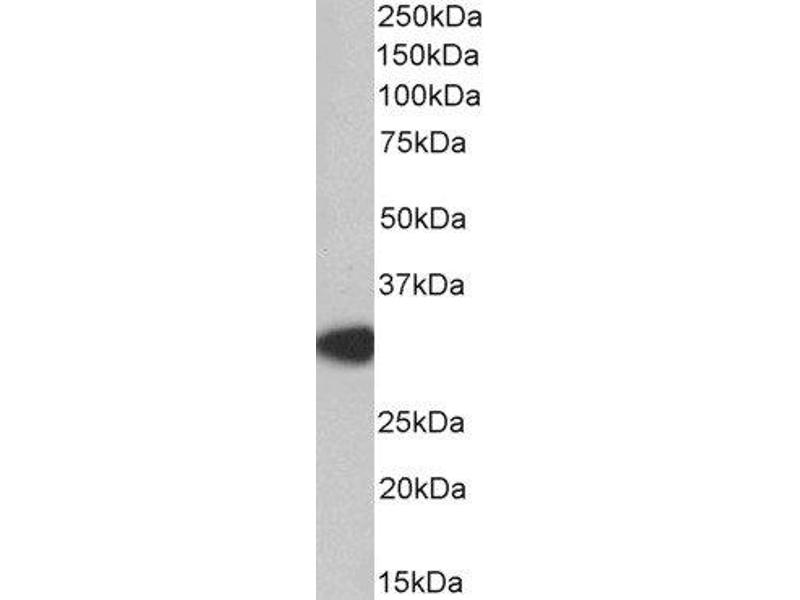 Western Blotting (WB) image for anti-Myeloid Differentiation Primary Response Gene (88) (MYD88) (Internal Region) antibody (ABIN2563994)
