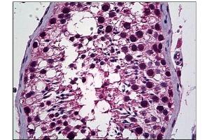 Immunohistochemistry (Paraffin-embedded Sections) (IHC (p)) image for anti-Phosphatidylinositol-3,4,5-Trisphosphate-Dependent Rac Exchange Factor 1 (PREX1) (Internal Region) antibody (ABIN784149)