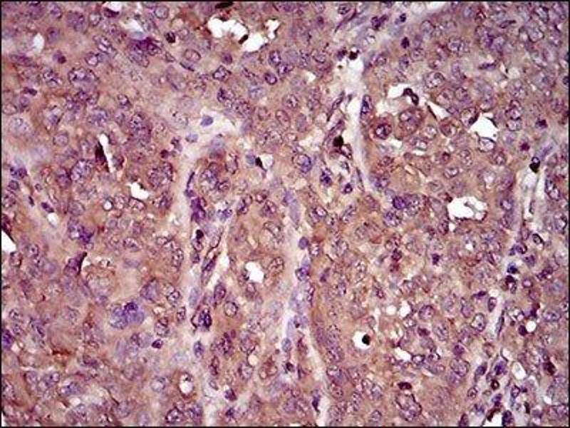 Immunohistochemistry (IHC) image for anti-Interleukin 3 Receptor, alpha (Low Affinity) (IL3RA) antibody (ABIN4325125)
