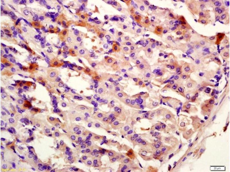 Immunohistochemistry (IHC) image for anti-Keratin 12 (KRT12) antibody (ABIN872955)