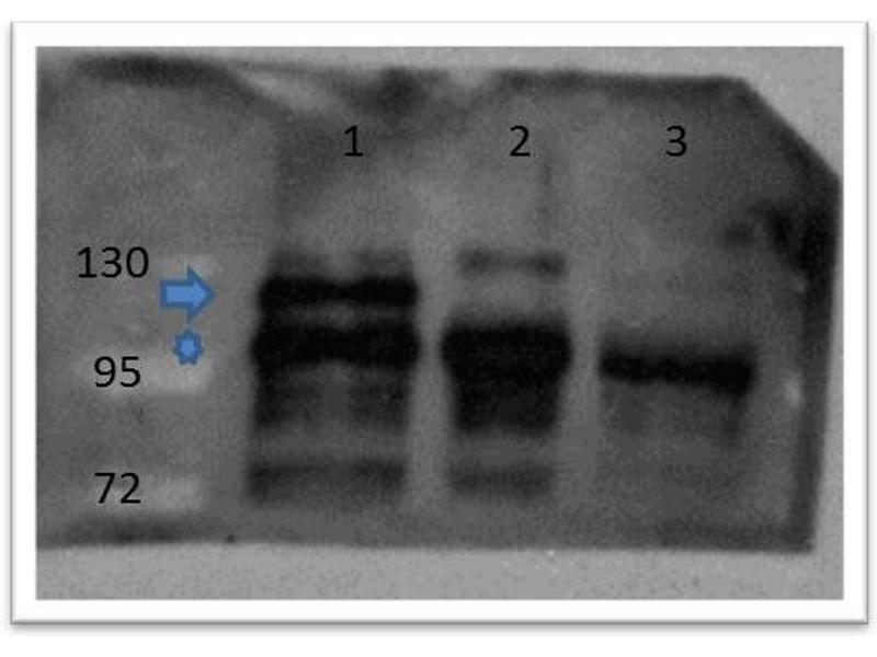 Image no. 2 for anti-Catenin, beta (C-Term) antibody (ABIN1043906)