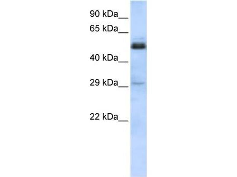 Western Blotting (WB) image for anti-Sex Comb On Midleg-Like 1 (Drosophila) (SCML1) (Middle Region) antibody (ABIN405019)