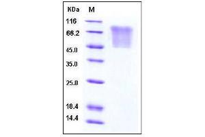 Image no. 1 for Chemokine (C-C Motif) Ligand 5 (CCL5) (AA 1-91) protein (Mucin Tag,His tag) (ABIN2003576)