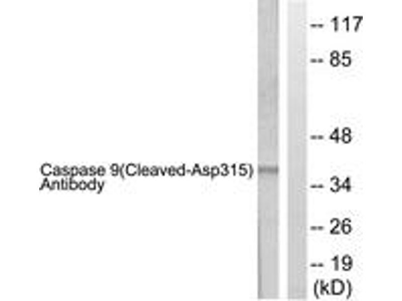 Western Blotting (WB) image for anti-Caspase 9 antibody (Caspase 9, Apoptosis-Related Cysteine Peptidase) (Cleaved-Asp315) (ABIN1536087)