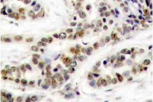 Immunohistochemistry (Paraffin-embedded Sections) (IHC (p)) image for anti-CREB1 antibody (CAMP Responsive Element Binding Protein 1) (pSer129) (ABIN498757)