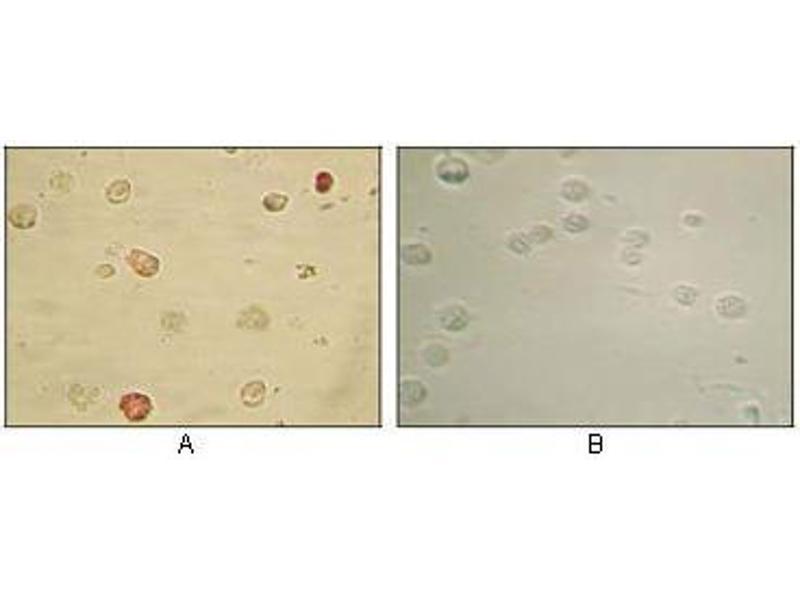 Immunohistochemistry (IHC) image for anti-KSHV ORF45 antibody (ABIN969254)
