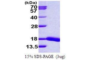 Image no. 1 for Ubiquitin-Conjugating Enzyme E2D 4 (Putative) (UBE2D4) (AA 1-147) protein (His tag) (ABIN667583)