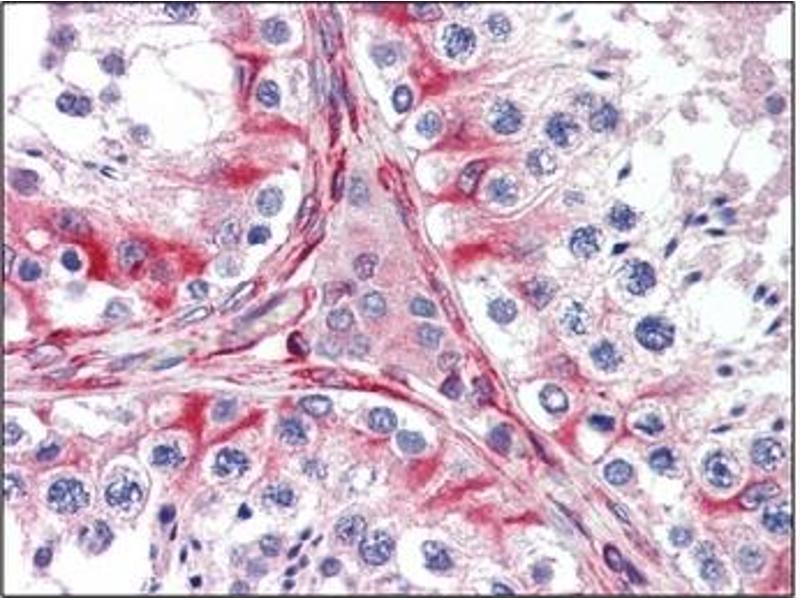Immunohistochemistry (IHC) image for anti-MCK10 antibody (Discoidin Domain Receptor Family, Member 1) (AA 602-681) (ABIN614409)