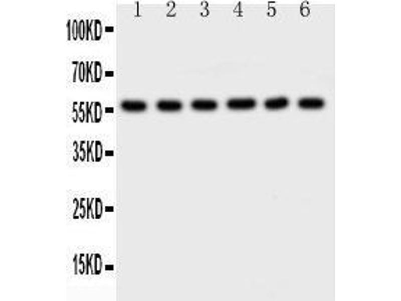 Western Blotting (WB) image for anti-AKT2 antibody (V-Akt Murine Thymoma Viral Oncogene Homolog 2) (AA 454-481) (ABIN3043781)