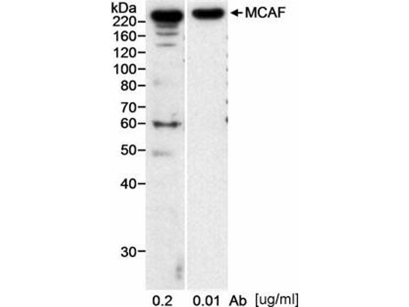 Western Blotting (WB) image for anti-Activating Transcription Factor 7 Interacting Protein (ATF7IP) (AA 25-100) antibody (ABIN151893)