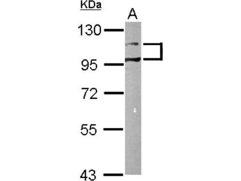 Western Blotting (WB) image for anti-DDR1 antibody (Discoidin Domain Receptor tyrosine Kinase 1) (ABIN443076)
